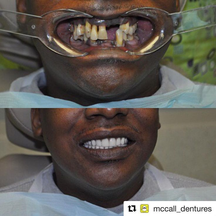 Have you done transformational work this amazing? Tag us @dentistryrepost and be featured too! #Repost @mccall_dentures with @get_repost   Immediate dentures are what we do best.  This was a life changing experience  #Dentures #Indiana  . . . . . #aboutdentistry #teeth #whiteteeth #dentaltechnician #dentist #smile #odontologia #prosthodontics #dentalassistant #bestofprosth #dentaltech #dentalstudent #toothfairy #dentalphoto #dentallab #dentistry #dentallaboratory #dental #doctor #prothese…