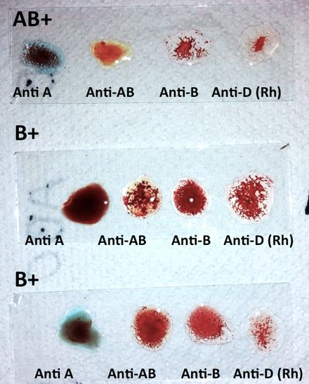 Grupo sanguíneo - Wikipedia, la enciclopedia libre                                                                                                                                                                                 Más