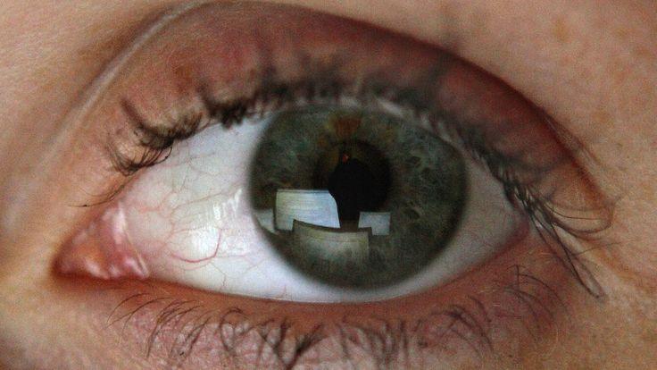 #Anzeichen erkennen   Schwankende Sehschärfe kann Warnzeichen für Diabetes sein - BILD: BILD Anzeichen erkennen   Schwankende Sehschärfe…