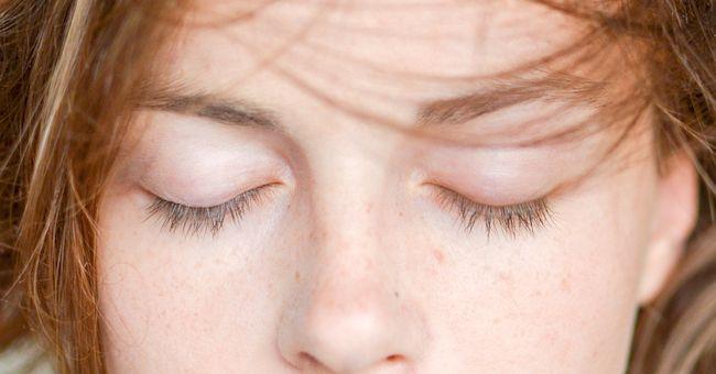 Palpebre cadenti: contrastarle con i rimedi naturali