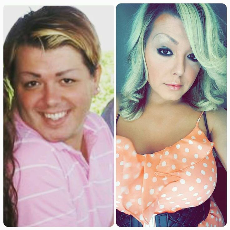 Post op transsexual mtf before and after-2052