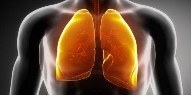 3 Alasan Utama Kenapa Non Perokok Bisa Terkena Kanker Paru-paru