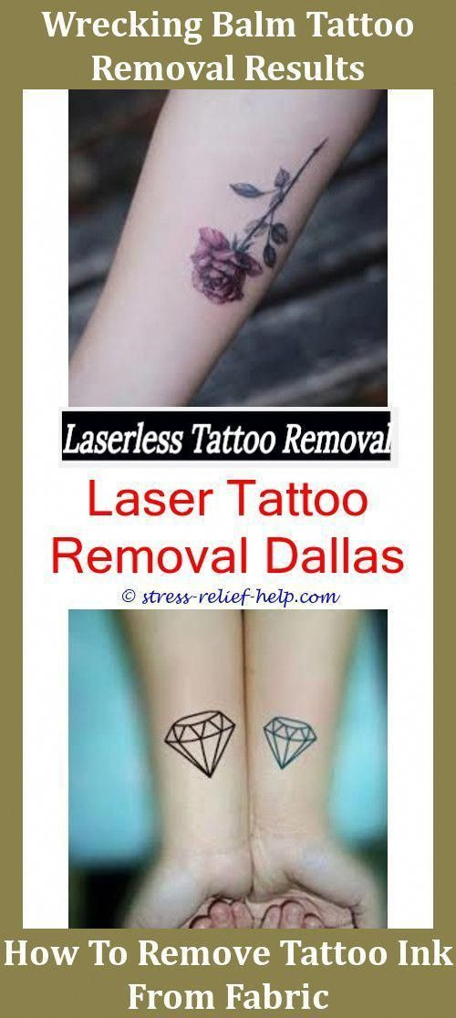 Best Tattoo Removal Cream For Black Ink