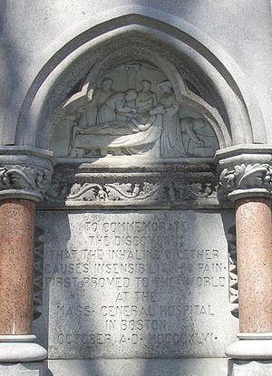 Diethyl ether - Wikipedia