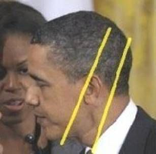 WHAT HAPPENED HERE, AND WHY DON'T WE KNOW?????        OBAMA HEAD SCAR FROM TATBIR ON THE DAY OF ASHURA (ISLAMIC SHIITE CEREMONY).