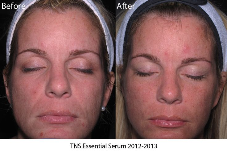 SkinMedica's TNS serum is a MUST for beauty. The transformation results show that better than anything!
