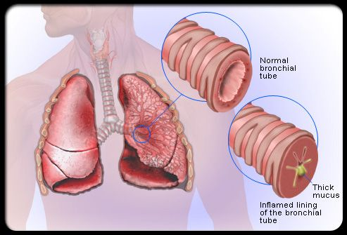 What is the treatment for acute bronchitis? The treatment is mostly supportive while your immune system clears the infection. Take paracetamol, ibuprofen, or aspirin to reduce fever (high temperature), and to ease any aches. Drink plenty of water, if you have a fever, to prevent dehydration. Smoking is very harmful in the setting of a bronchial disease so try to quit.