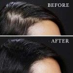 Toppik Reviews – How Well Does It Work for Thinning Hair?