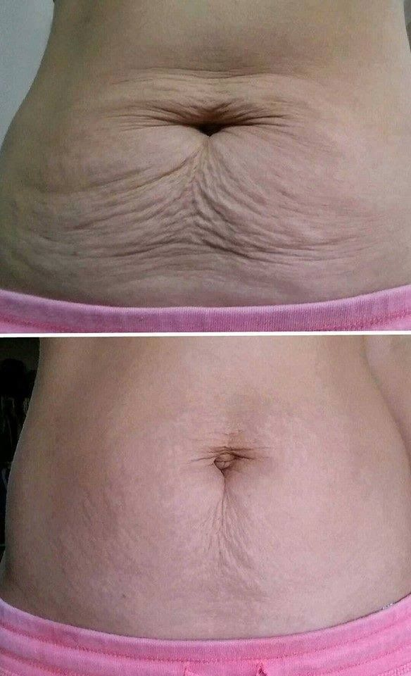 This is a brave brand partner who's seeing amazing results with Nerium Firm. It's real.