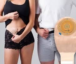 """Ostomy care is of prime significance. The stories surgically made occupying either defecation or pee, contingent upon the ostomy. The patient is then encouraged to utilize a pouching framework or a pack. When it is fitted onto the stoma, the pouching machine must be dealt with, depleted and cleaned regularly. Visit: <a href=""""https://www.convatec.co.in/about-convatec-ostomy-care/company-overview/"""">ostomy care</a>"""