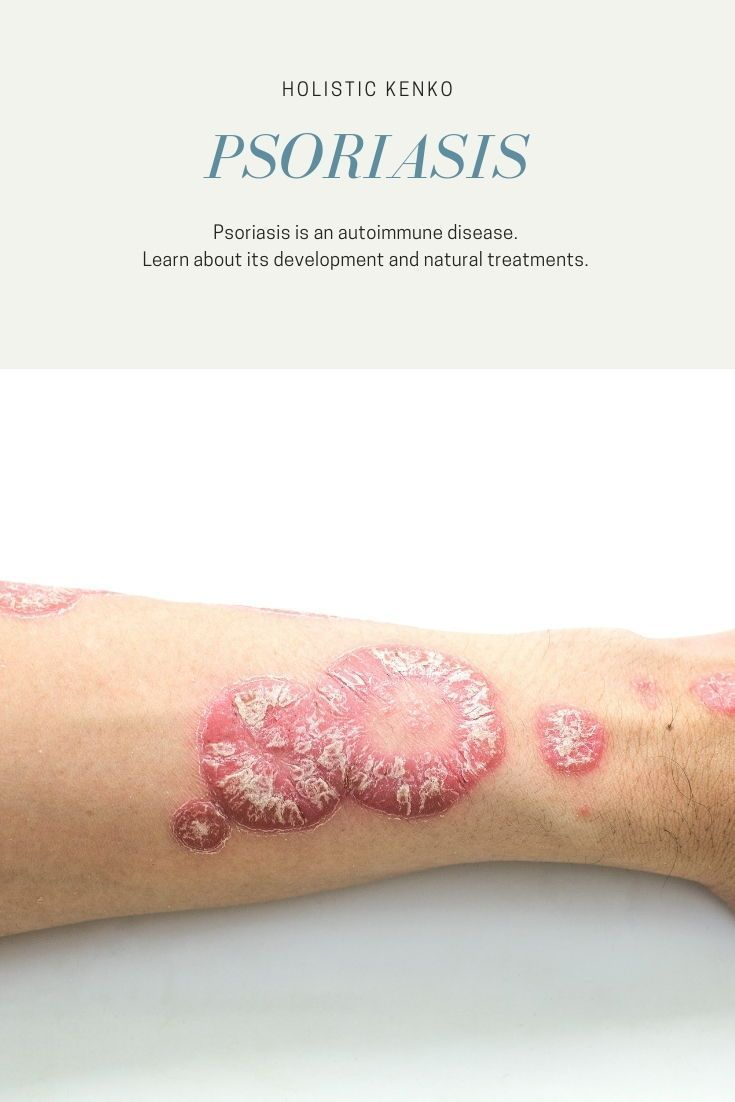 Environmental Factors in Skin Disease