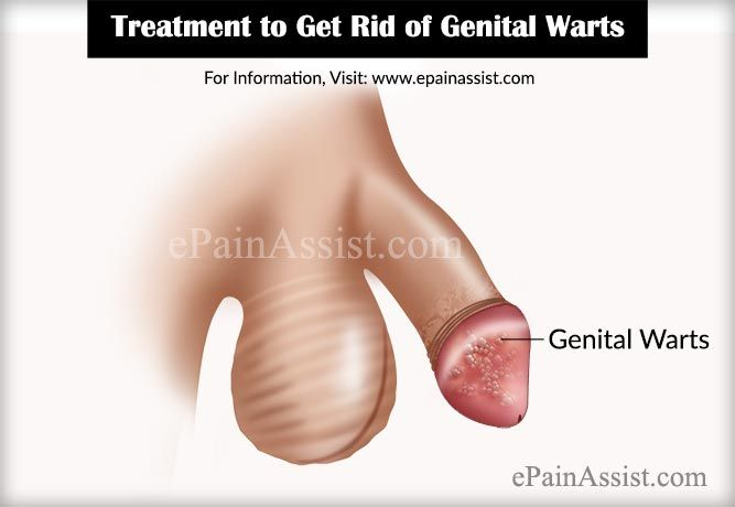 Treatment to Get Rid of HPV or Genital Warts http://www.wartalooza.com