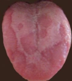 Improvised home remedies can clean up your Tongue permanently & can cure all types of tongue problems like Geographic Tongue, Tongue Fissures/Cracks, Bald Patches, Thrush, and Other Tongue Pro...