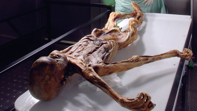 "Talk about a cold case: the corpse of  the world's oldest murder victim, ""Oetzi the Iceman,"" has undergone the ultimate investigation: a mapping of his complete genome.: Heart Disease, Cold Cases, Lyme Disease, Ancient Human, Tyrolean Iceman, Disea Awareness, Disea Epidem, Alps, Real Disea"