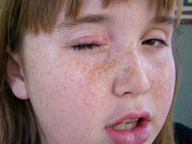 Soğan ve Sarımsakla Arpacıktan Kurtulun  Arpacık göz kapağında oluşan bir enfeksiyondur. Bu enfeksiyon göz kapağının içinde ya da dışında, içi iltihapla doludur. Sıkmak enfeksiyonun daha da yayılmasına neden olur. Arpacık olan bölgeyi kaşımaktan kaçınılmalıdır.    Arpacıktan kurtulmak için bağışıklık sistemini güçlendiren ve antibiyotik etkilere sahip bitkiler faydalıdır. Ayrıca taze sebze ve meyveler de bağışıklık sistemini güçlendirmeye yardımcı olur.