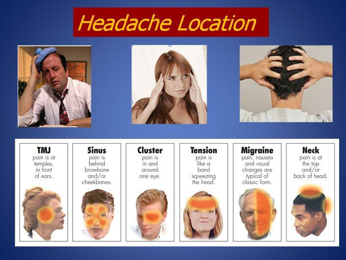 headache types and locations - Google Search