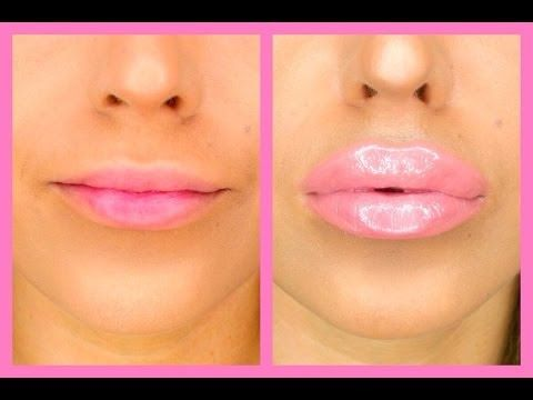 how to get bigger lips without injections