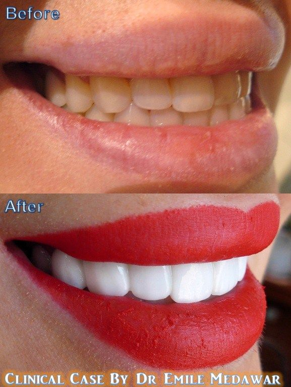 perfect smile veneers самара