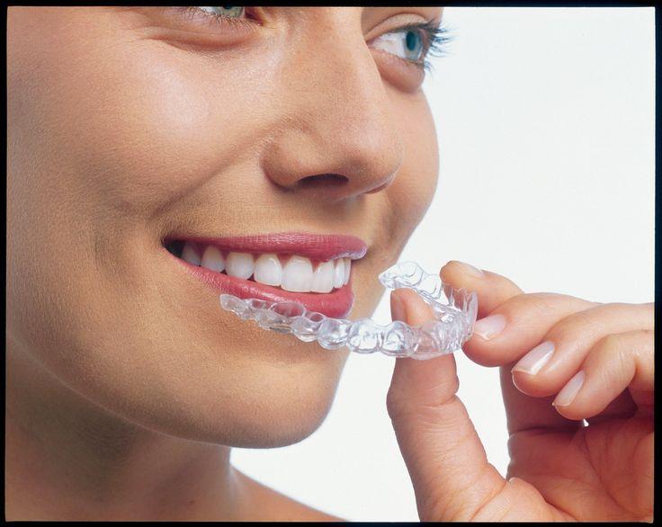 La #ortodoncia para adultos #invisalign se sirve de férulas removibles transparentes prácticamente invisibles. Un tratamiento cómodo, higiénico y #estético