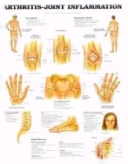 yoga for arthritis  yoga for arthritis herbs for