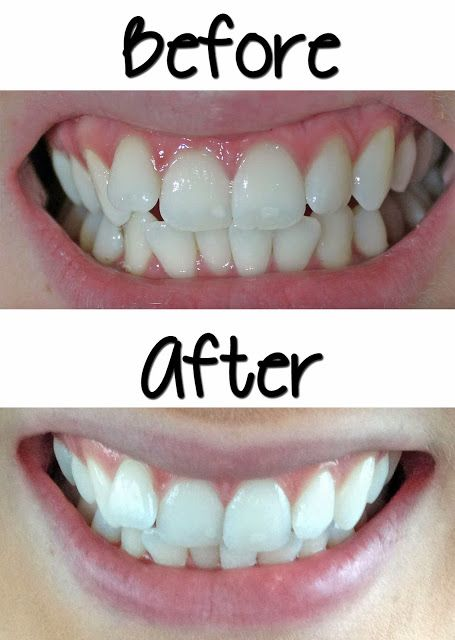 "Affordable Effective Teeth Whitening - Smile Bright Review before and after. Use code ""kit24"" to get it for only $25 https://www.youtube.com/watch?v=z-Y-cif6zFw"