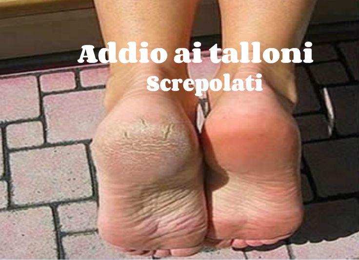 Molte sono le condizioni di salute che possono provocare i talloni screpolati. Nonostante ciò, la causa più comune è l'uso di scarpe aperte come sandali o
