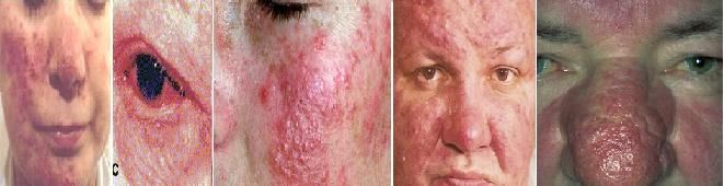 The effectiveness of tetracycline is essentially due to its anti-inflammatory action. This antibiotic may be prescribed for the treatment of acne rosacea (papulopustula rosacea) and in general, has been effective in diminishing inflammation after one to two months. But it doesn't eliminate the red flushed face symptoms generally associated with Erythematotelangiectatic Rosacea and it doesn't cure rosacea. Doxycycline... FULL ARTICLE…