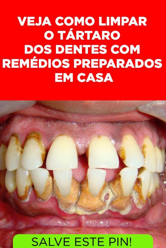 Como Limpar O Tartaro Dos Dentes Com Remedios Caseiros E Possivel