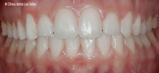 ¿Quieres mejorar tu sonrisa y corregir tu caso de mordida abierta? ¡En solo 18 meses con la ortodoncia Damon transparentes!