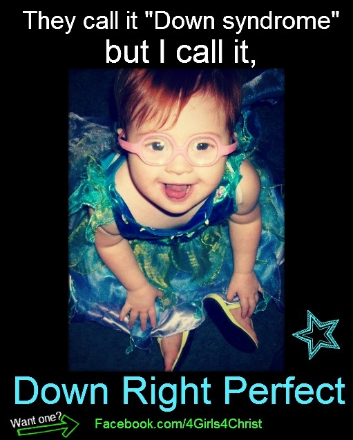70 best Down Syndrome Kids images on Pinterest | Down syndrome ...