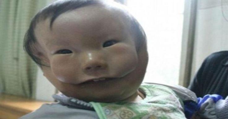 Ραγίζει καρδιές το αγόρι – μάσκα- Φαίνεται να έχει δυο πρόσωπα από γενετική διαταραχή!!!-ΦΩΤΟ Crazynews.gr