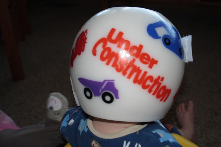 A3 Helmet Level 3 And Pan: Littlebumpies.com, Doc Band, Starband, #cranial #molding