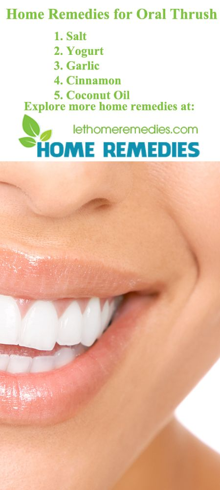 Home Remedies for Oral Thrush - Natural Oral Thrush Treatment. https://lethomeremedies.com/home-remedies-for-oral-thrush/ Oral Thrush or scientifically called Oropharyngeal Candidiasis, is the medical condition in which your tongue or the inner side of your mouth is infected by a type of fungus known as Candida Albicans.  This medical condition happens due to the weakening of your immune system which cannot fight against the outgrowth of the fungus...