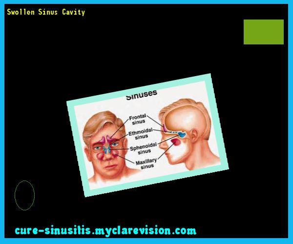 Swollen Sinus Cavity 140528 - Cure Sinusitis