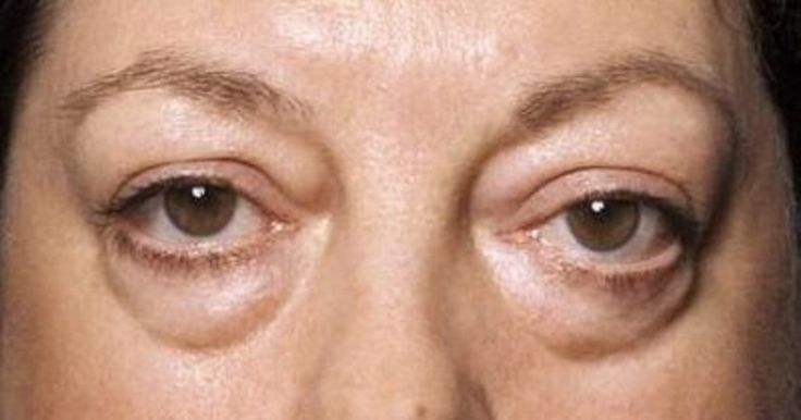 Get Help for Those Baggy Bags Under Your Eyes