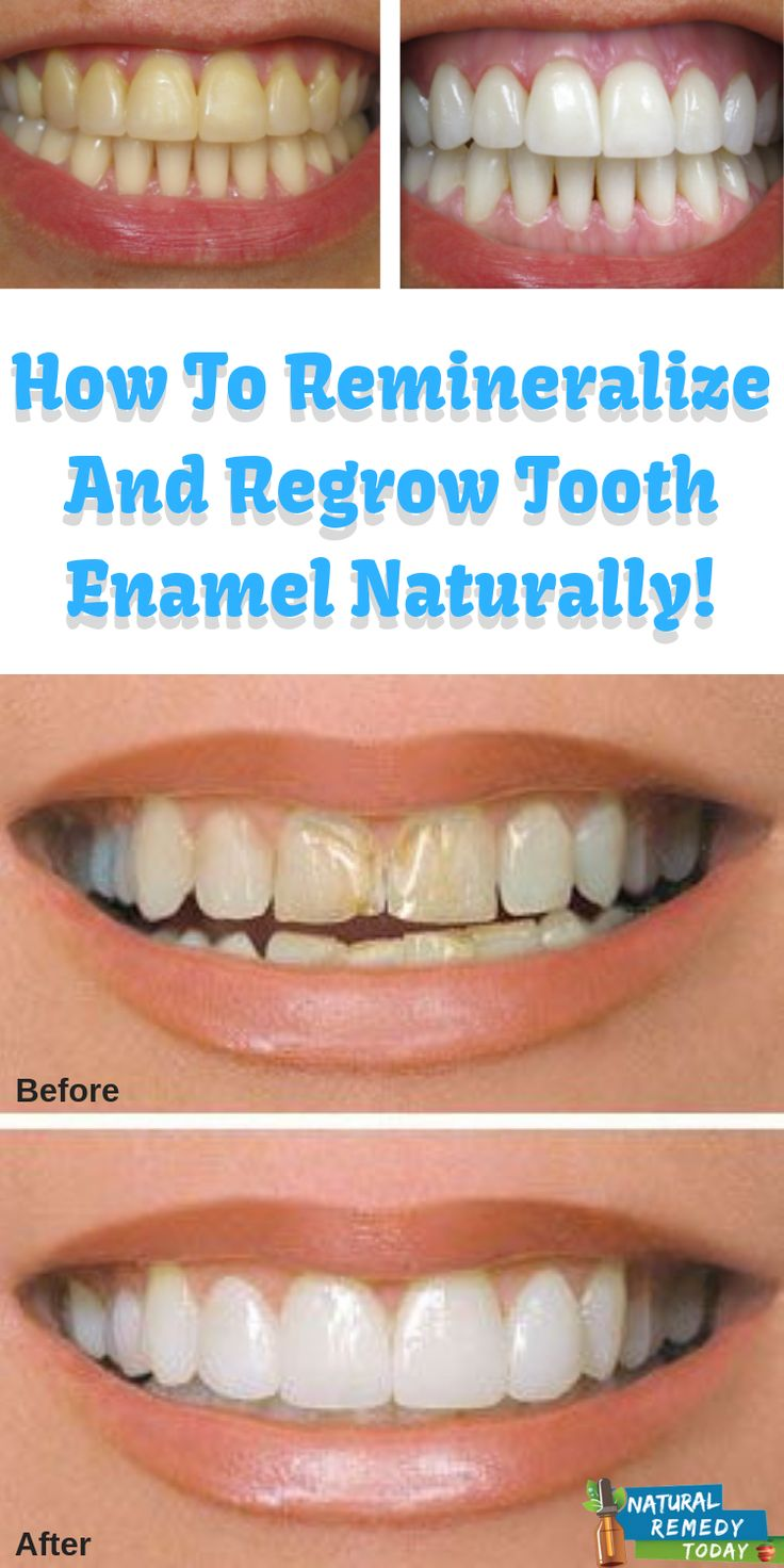 How To Remineralize And Regrow Tooth Enamel Naturally! in