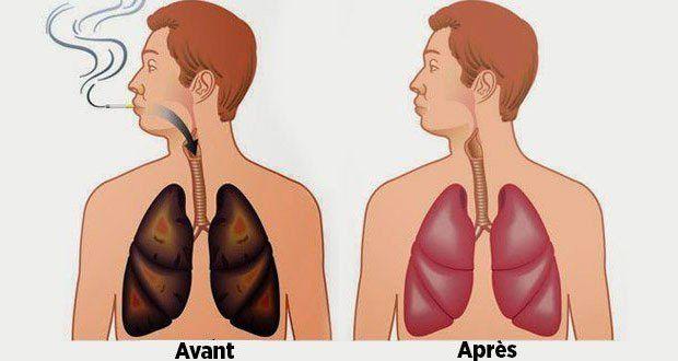 Il a été observé que même les anciens fumeurs qui ont arrêté il y a plusieurs années ont des traces de lésions pulmonaires. Même si on n'a jamais fumé, la fumée secondaire des cigarettes, la pollution industrielle, les gaz d'échappement des véhicules et maintenant les chemtrails avec des nanoparticules de métaux lourds qui nous tombent …