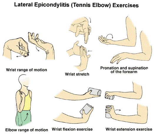 19 best Tennis elbow images on Pinterest Tennis elbow