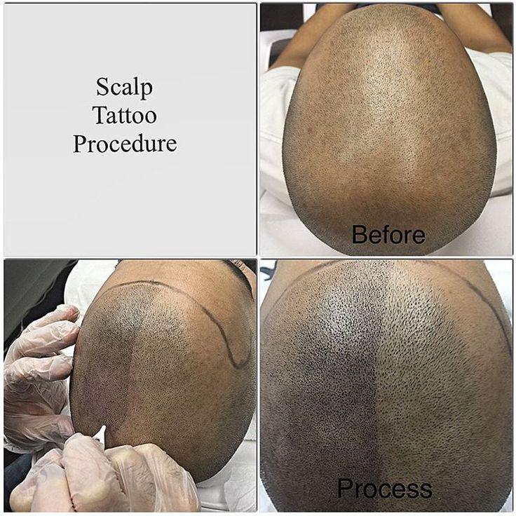 Scalp Tattoo Procedure @ Scalp Esthetica! 1 Eglinton Ave East Toronto www.scalpesthetica.com 647-967-7546(SKIN)