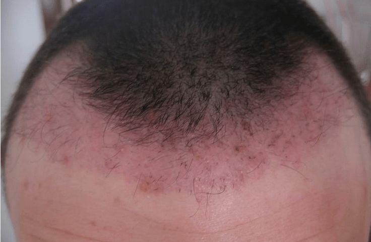 I brufoli in testa sono davvero fastidiosi, ecco alcuni rimedi naturali e medicinali per eliminarli e curarli definitivamente.