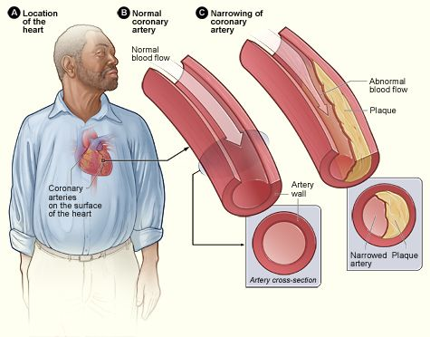 showing the affects in the artery