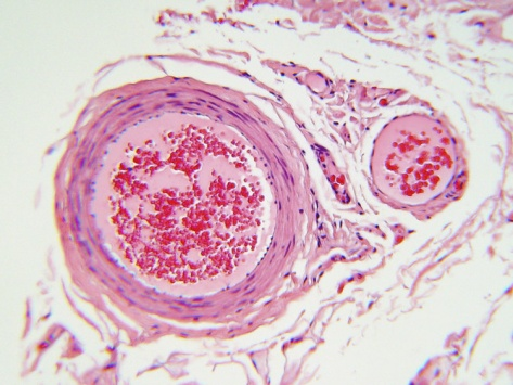 liver tissue stained with massons trichrome biology essay Quantitative analysis was performed on specimens stained with masson's trichrome as  volume fraction of fibrosis in liver tissue  biology, and functions.