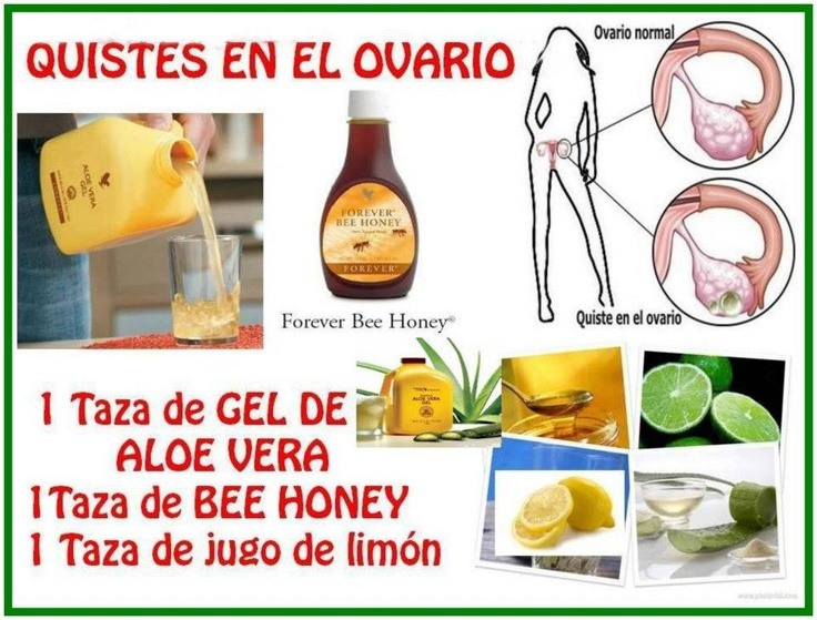 Forever Bee Honey and Aloe Vera Gel and Lemon Juice for Ovary Problem.