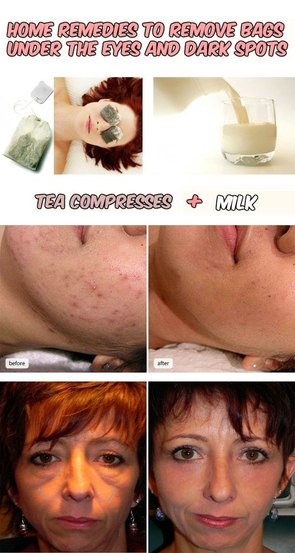 Home remedies to remove bags under the eyes and dark spots - WomenIdeas.net