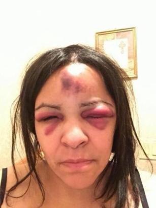 Rikers Island inmate beat up jail captain