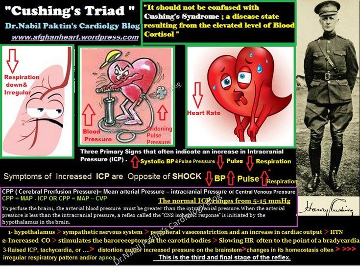 Cushing's Triad for ICP