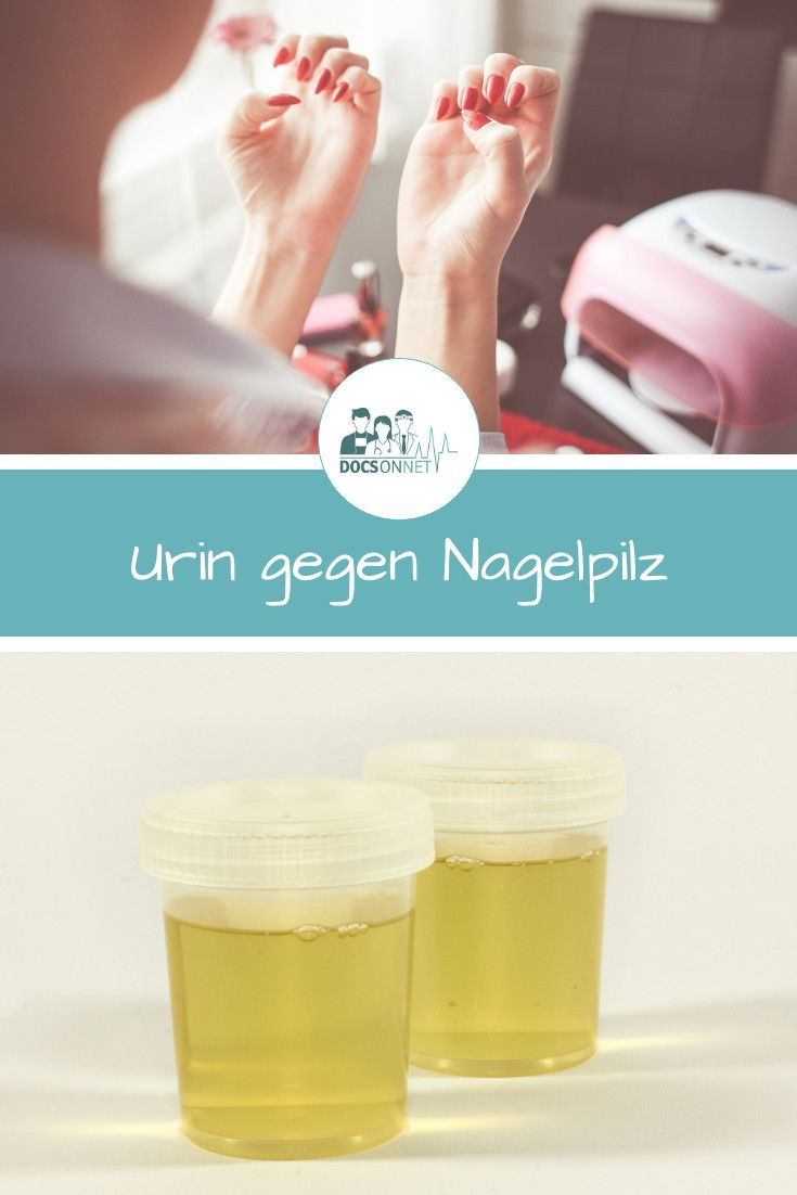 Urin Gegen Nagelpilz Das Bringt Das Hausmittel Nagelpilz