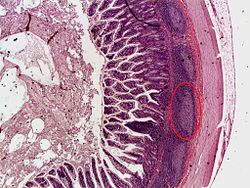 Peyer's patch (improved color).jpg Found on the ileum (lowest part of small intestine). B-lymphocytes are in the germinal centers. T-lymphocytes surround the follicles/centers.