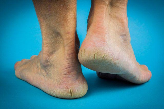 Tratando as rachaduras dos pés com receitas caseiras