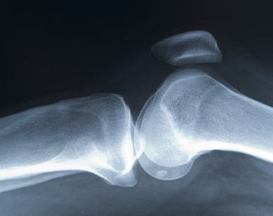 Exercises After Meniscus Surgery